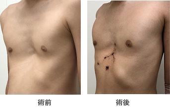 図8. 10歳代男性。胸骨挙上法を施行。