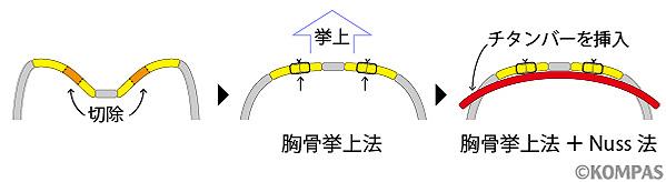 図9. 胸骨挙上法+Nuss法の概要