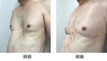 図10. 70歳代男性。胸骨挙上法+Nuss法を施行。