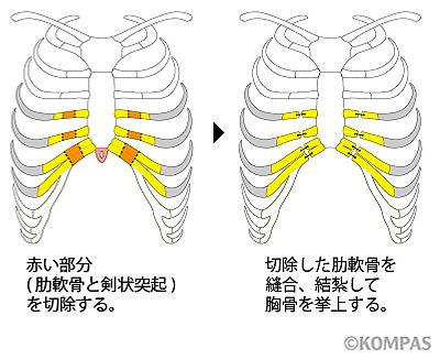 図8. 胸骨挙上法の概要(正面像)