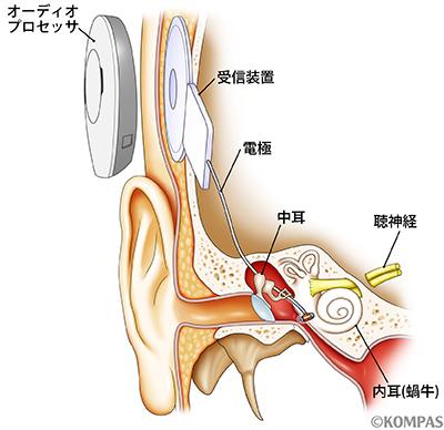 図2. 人工中耳の植え込み術