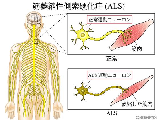 図1.筋萎縮性側索硬化症(ALS)