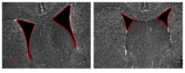 図2. 新規手法による脳実質萎縮の阻害