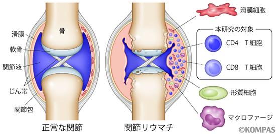 図1. 正常な関節と関節リウマチの関節