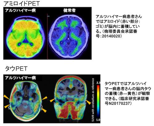 図2. 新しい認知症PET検査