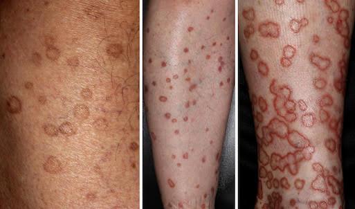 図1. 多発する汗孔角化症の皮疹