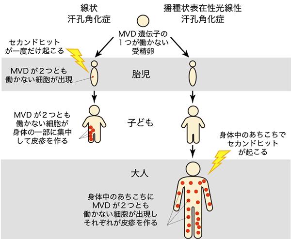 図3.2種類の汗孔角化症が起こる仕組み
