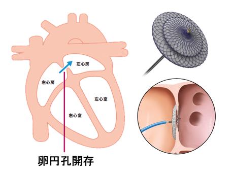 図 卵円孔開存閉鎖術