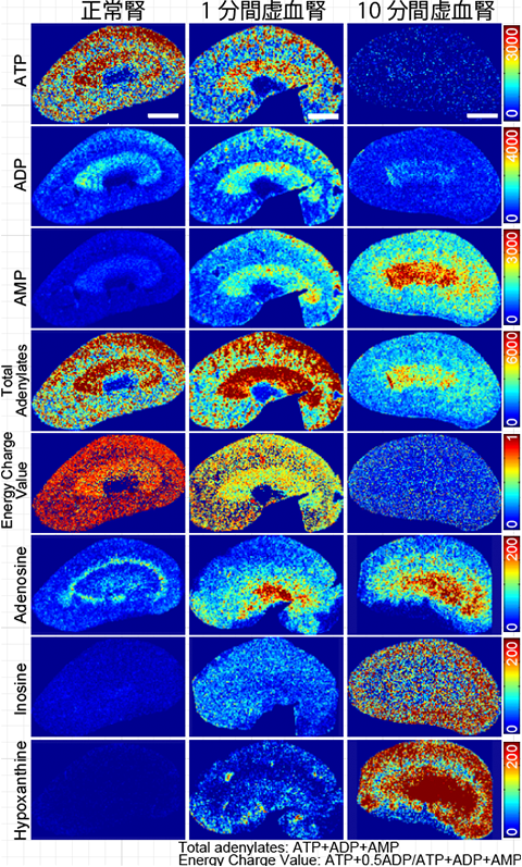 図2. 質量分析イメージングを用いた短時間の腎血流遮断に伴う腎ATP代謝産物変容の解析