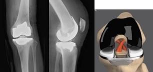 図1.十字靭帯温存型TKA 術後X線像(左)およびイメージ図(右)
