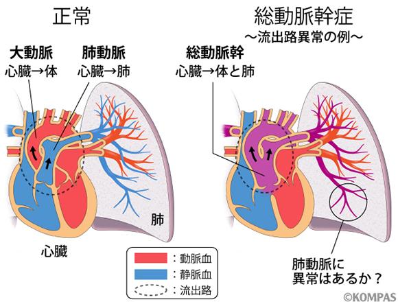 図1. 先天性心疾患の約30%を占める流出路異常とそれに伴う肺動脈の異常を考える