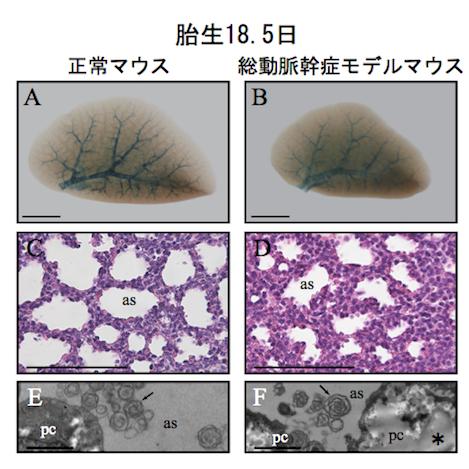 図4. 総動脈幹症モデルマウスの肺は胎生18.5日で成熟が障害されていた
