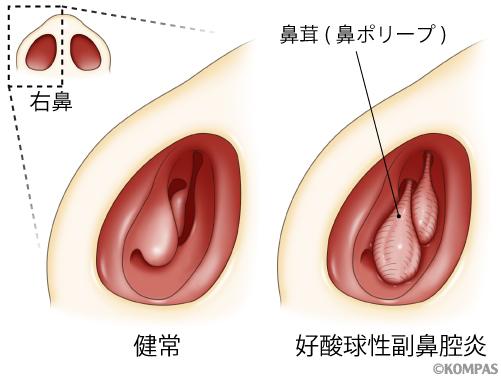 炎 副 鼻腔