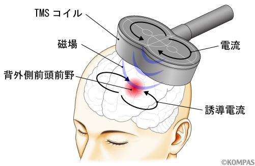 図1.TMSによる脳の局所刺激