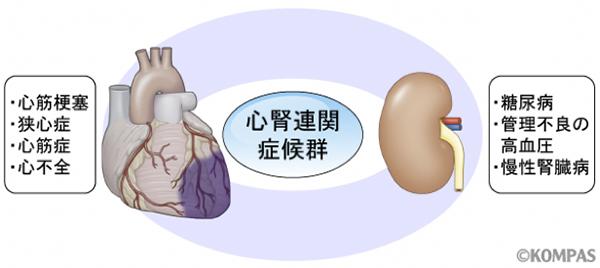 図3. 心腎連関症候群