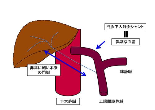 図1b.門脈下大静脈シャントにおける血行動態
