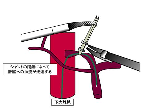 図2. 腹腔鏡によるシャント=異常血管閉鎖術