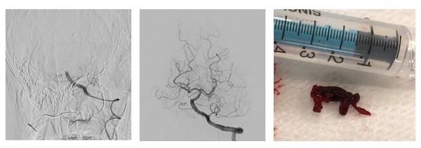図2 (左):血管閉塞(脳底動脈)(中央):血管内治療、再開通(右):回収された血栓