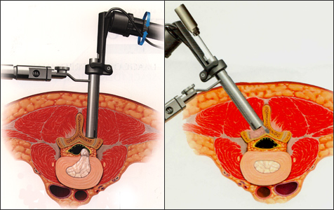 内視鏡椎間板切除イメージ図