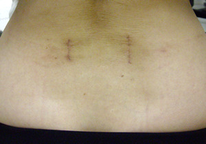 傷は両サイドに縦に約3cmと小切開