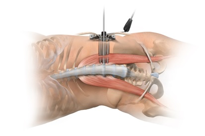 図8. イメージ:側方経路椎体間固定術